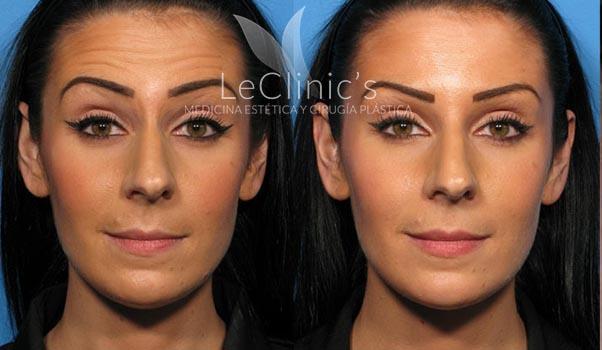 Antes y después- Botox