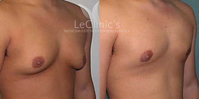 Antes y después- Ginecomastia