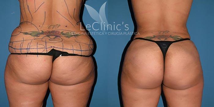 Antes y después- Liposucción II