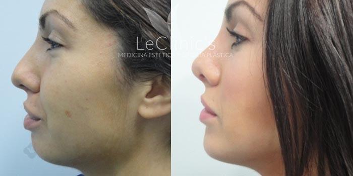 Antes y después- Rinoplastia y mentoplastia