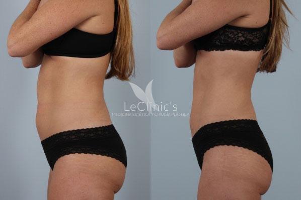 Liposucción sin cirugía Lipolyx Precio