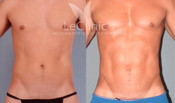 Marcacion abdominal antes y despues mujeres