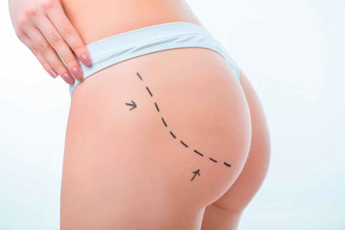 Aumento de glúteos con implantes