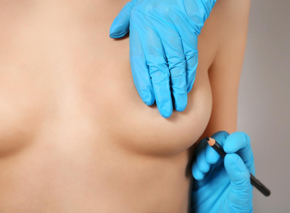 Qué es la mamoplastia