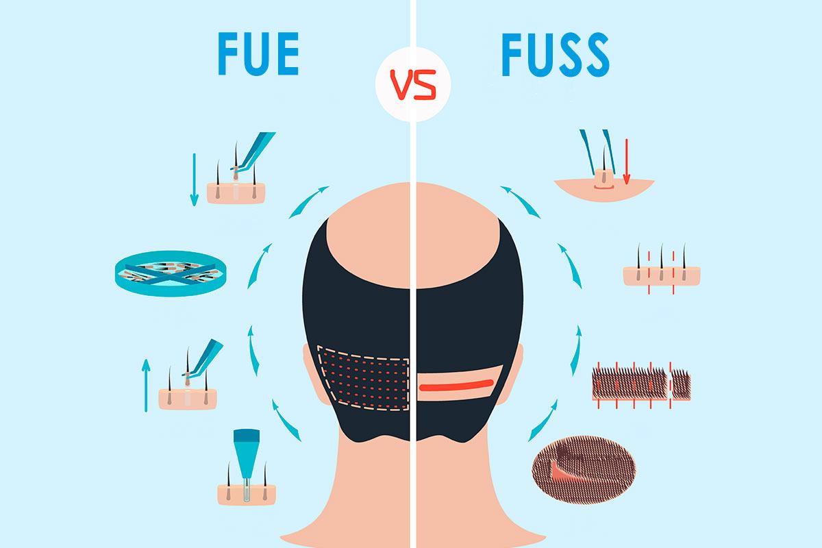 Diferencias entre las técnicas FUE y FUSS