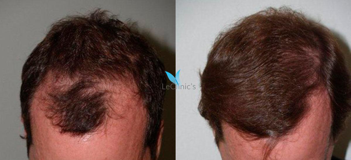 Resultados injerto de pelo