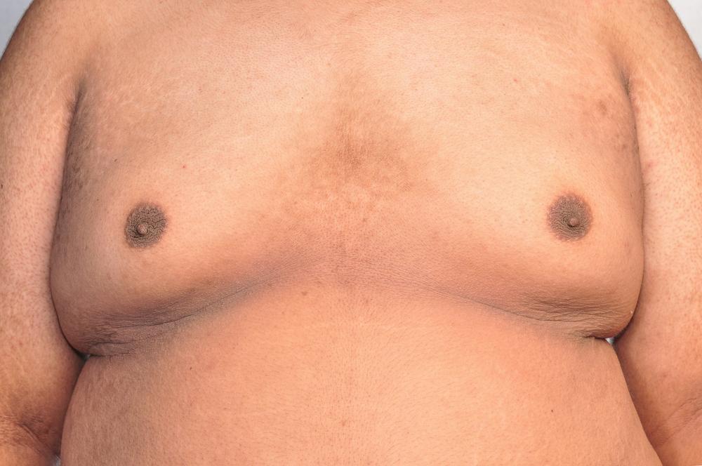 Información ginecomastia masculina