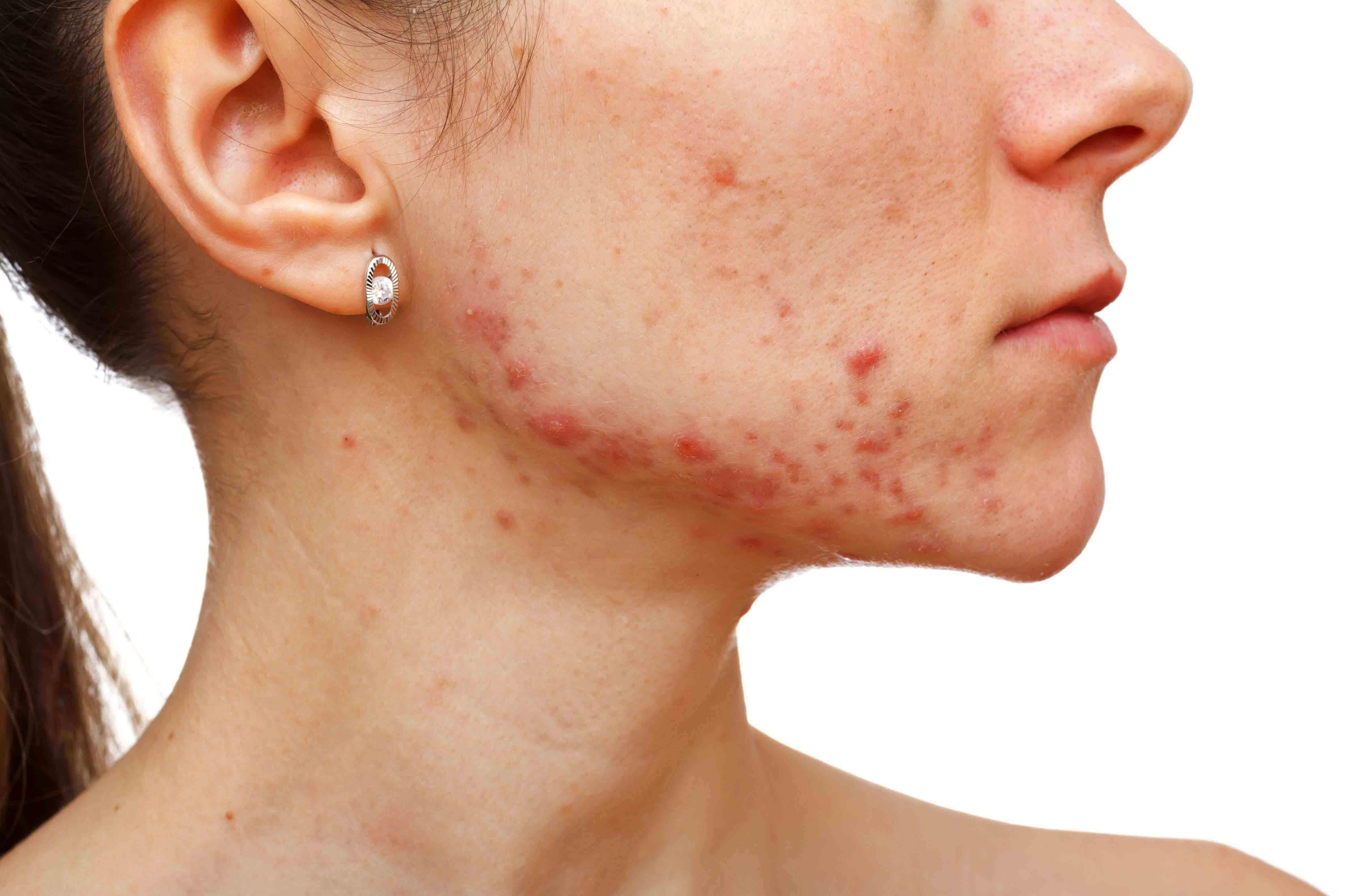 Eliminar acné activo